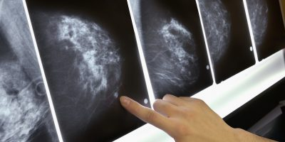 mamografie, mamograma, mamografist, medic imagistica, cancer de san, leziune san, nodul, ganglion, adenopatie, mastoza, interpretare mamografie, neoplasm san, stereotaxie, punctie san, biopsie san, screening, screening mamografic,