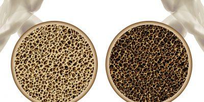 osteopooza, test dexa, dexa, dxa, osteopenie, menopauza, test osteoporoza, osteodensitometrie, fractura os patologic, densitate minerala osoasa, os osteoporotic, coloana, sold, antebrat,